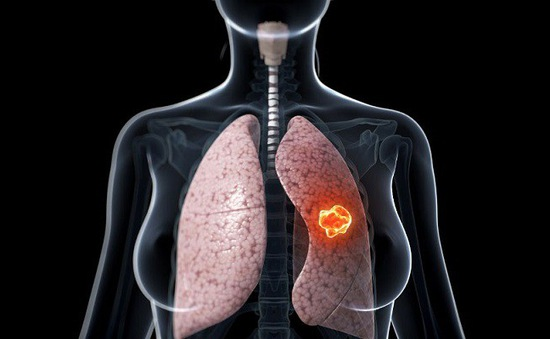 Cảnh giác với ung thư phổi khi có các triệu chứng sau