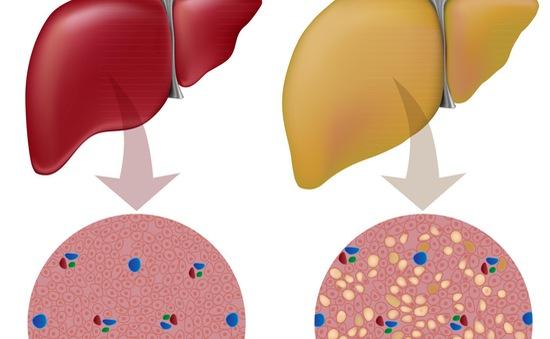 7 lời khuyên của chuyên gia cho người mắc gan nhiễm mỡ