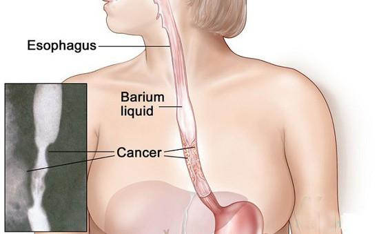 Dấu hiệu cảnh giác với ung thư thực quản