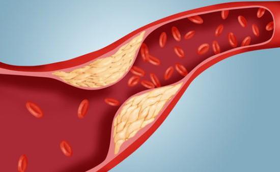 Cảnh báo 6 bệnh lý dễ gặp phải nếu cholesterol tăng cao