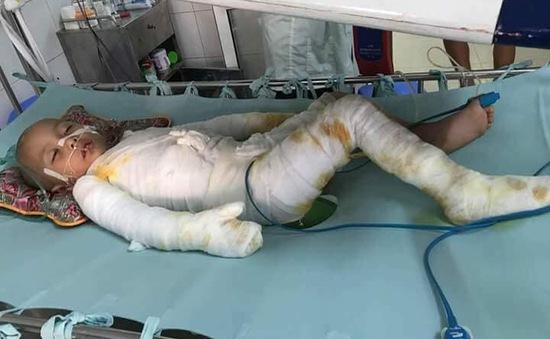 Xót xa cậu bé nghèo 4 tuổi bỏng 63% cơ thể
