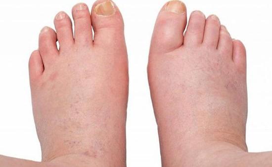 Phù chân – dấu hiệu của nhiều bệnh lý nguy hiểm