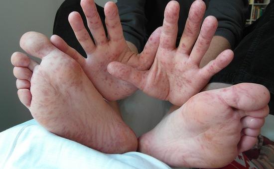 Singapore chế tạo thành công bộ xét nghiệm nhanh bệnh tay chân miệng