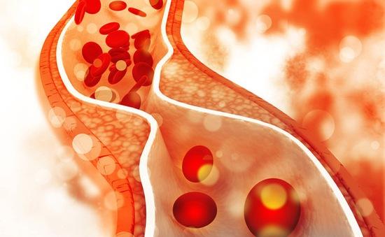 """Lượng cholesterol """"tốt"""" có thể ảnh hưởng xấu đến một số người"""