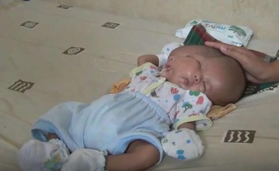 Indonesia: Bé trai mắc dị tật hiếm gặp với 2 khuôn mặt và 2 bộ não