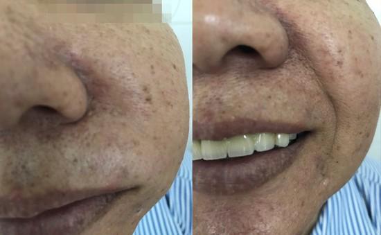 Sưng đau mặt vì u nhầy bành trướng trong xoang hàm