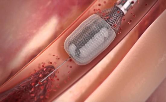Thiết bị giúp loại bỏ các cục máu đông một cách an toàn