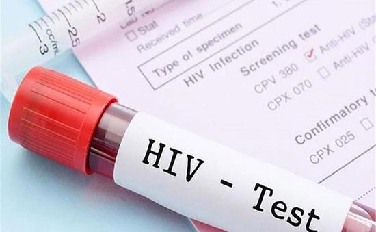 Thử nghiệm thành công giai đoạn đầu vaccine mới phòng HIV/AIDS