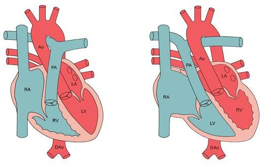 Cứu sống kịp thời trẻ sơ sinh bị chuyển vị đại động mạch