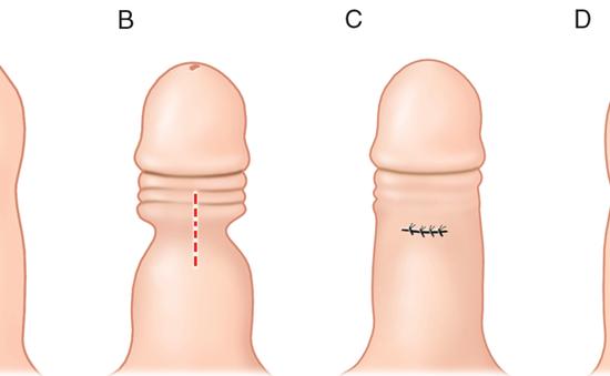 Bệnh về bao quy đầu - Đừng chủ quan