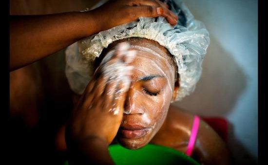Báo động tình trạng lạm dụng kem tẩy trắng da ở châu Phi