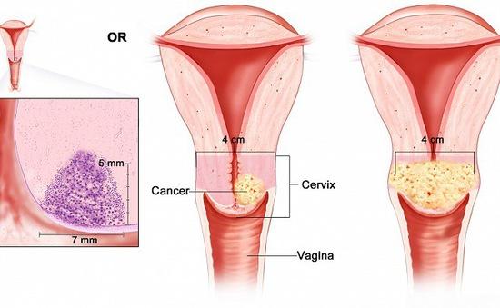 Dấu hiểu cảnh báo ung thư cổ tử cung chị em thường bỏ qua