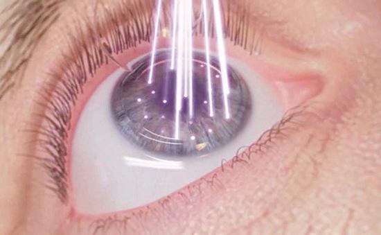 Muốn phẫu thuật cận thị cần lưu ý gì?