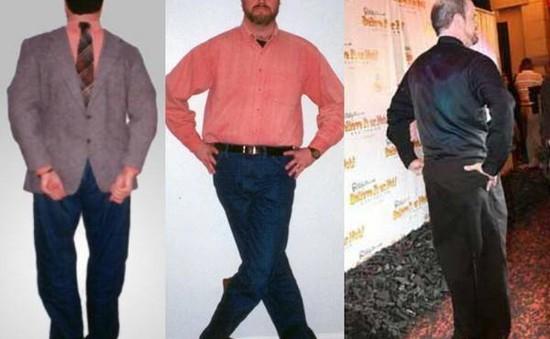 Người đàn ông có thể đi bộ khi quay chân ngược 180 độ