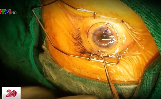 TP.HCM: Hai nữ bệnh nhân sáng mắt nhờ được hiến giác mạc