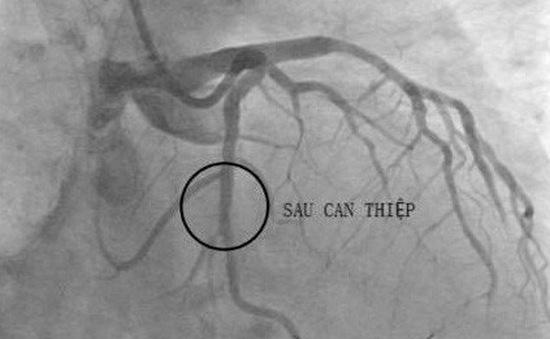 Nguy cơ tái hẹp sau đặt stent mạch vành
