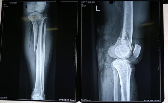 Cấp cứu bệnh nhân gãy chân, đứt mạch máu do tai nạn giao thông