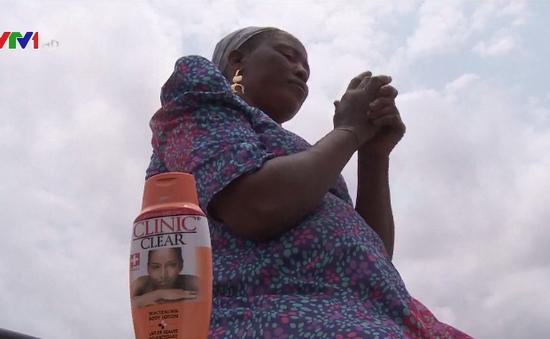 Sôi động thị trường sản phẩm làm trắng da ở châu Phi