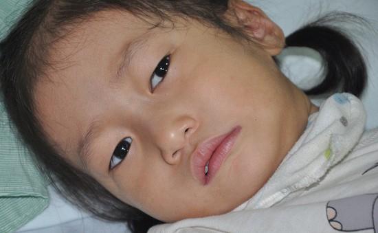 Thiếu 100 triệu đồng phẫu thuật, bé 3 tuổi có nguy cơ chết vì bố mẹ không có tiền
