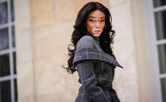 Người mẫu bạch biến lần đầu tham gia show diễn thời trang Victoria's Secret