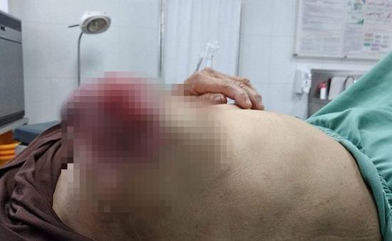 3 năm đắp thuốc lá chữa ung thư vú, người phụ nữ phải nhập viện vì biến chứng