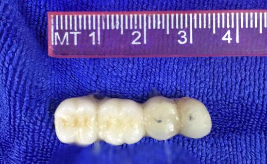 Hy hữu: Cụ ông 90 tuổi bị rơi cầu răng giả 4 chiếc vào phế quản