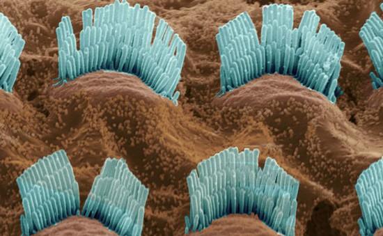 Các nhà khoa học đã tìm ra loại protein giúp cải thiện thính giác
