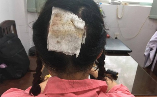 Hoại tử da đầu do sự cố khi uốn tóc
