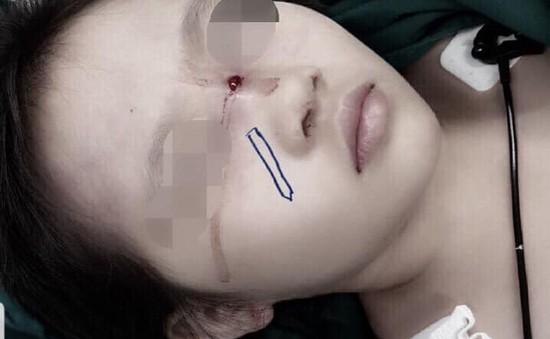 Bé gái 6 tuổi bị bút chì đâm xuyên sống mũi do té ngã