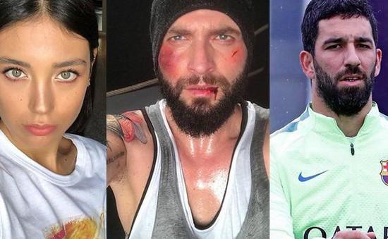 Sao Barcelona nguy cơ ngồi tù 12 năm rưỡi vì đấm vỡ mũi ca sĩ nổi tiếng