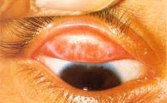 Đau mắt hột có nguy hiểm?