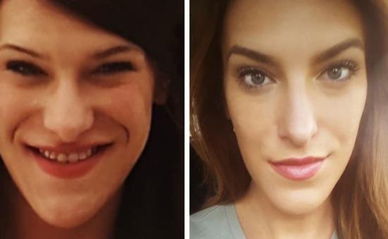 Biến dạng khuôn mặt vì bác sĩ không phát hiện khối u ở tuyến yên