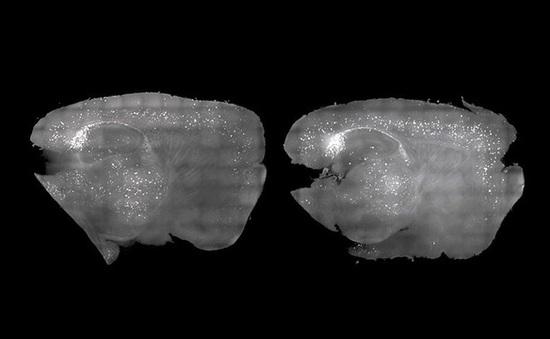 """Phương pháp mới giúp """"dọn sạch"""" mảng bám Alzheimer từ chuột chỉ bằng ánh sáng và âm thanh"""