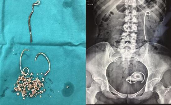 Cô gái trẻ bị bỏ quên... stent trong niệu quản suốt 5 năm