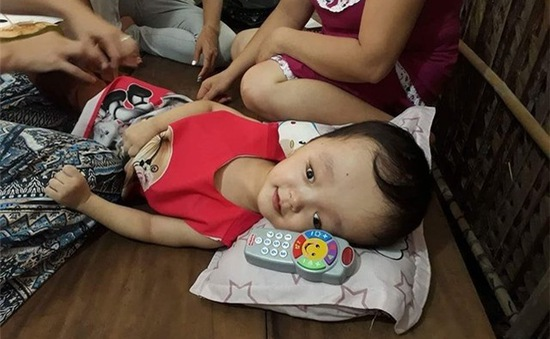 Mở rộng hỗ trợ mổ não úng thủy cho trẻ em