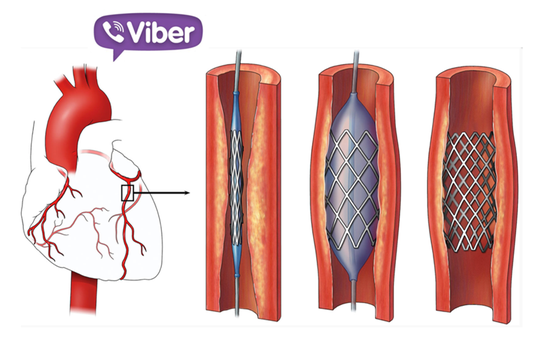 Cứu sống bệnh nhân bị nhồi máu cơ tim qua... Viber