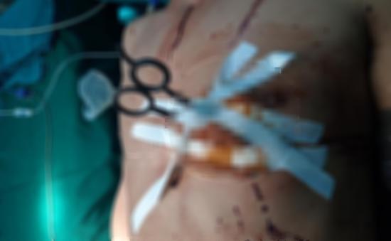 Người đàn ông nhập viện với cây kéo còn cắm sâu vào ngực