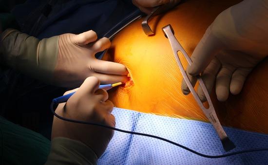 Nội soi cứu bệnh nhân bị u nhầy nhĩ trái