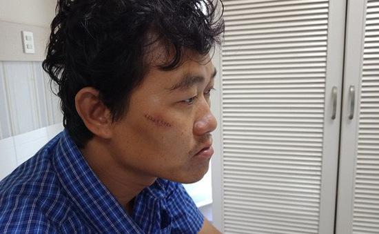Bình Thuận: Bắt khai thác khoáng sản trái phép, tổ phó bị chém rách mặt