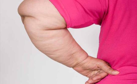 10 dấu hiệu của bệnh béo phì bạn nên biết
