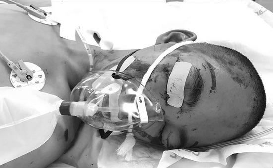 Hoàn cảnh đáng thương của bé trai bại não bị tai nạn