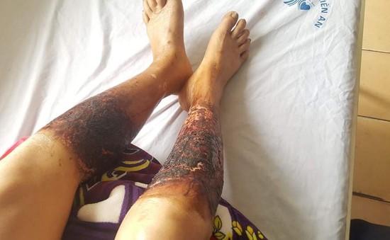 Lội qua mương nước bắt cua, một phụ nữ bị... bỏng nặng hai chân