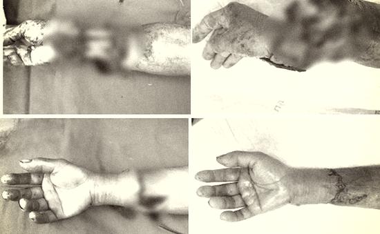 Đi gặt lúa thuê, người phụ nữ ở Hải Dương bị máy tuốt lúa quấn nát tay