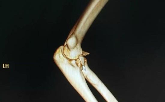 Gãy xương cánh tay, trật khớp khuỷu tay vì bế... bạn gái