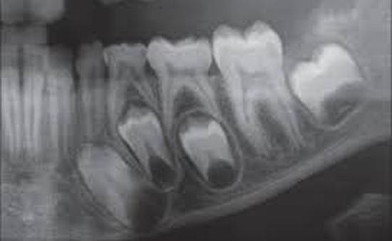 Chớ chủ quan với các bệnh lý về răng