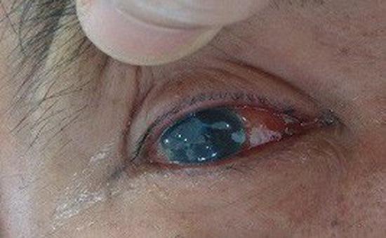Viêm loét giác mạc - bệnh lý nhãn khoa nguy hiểm