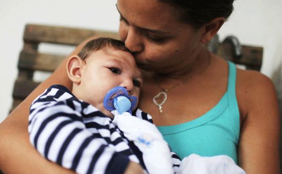 Virus zika gây chậm phát triển thần kinh ở trẻ