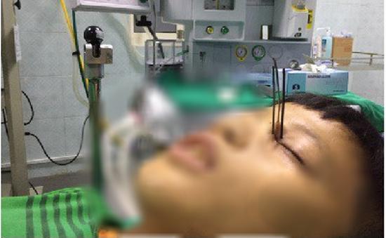 3 cây đinh kim loại từ súng tự chế ghim vào hốc mắt bé trai 13 tuổi