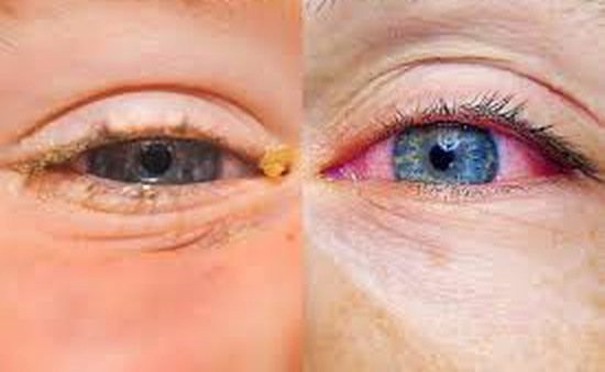 Nguyên nhân khiến mắt bị dị ứng