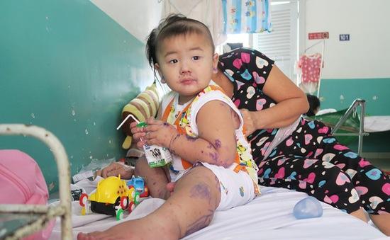 Gia tăng trẻ em mắc bệnh tay chân miệng tại TP.HCM